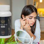 Royal Skin 500 – foro, precio, en farmacias, funciona